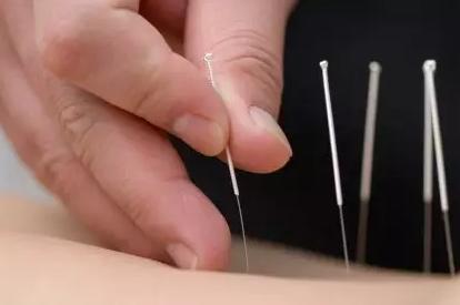 参加上海针灸培训的理由有哪些