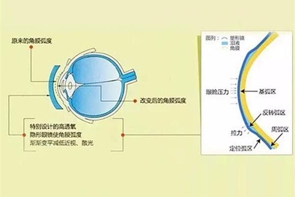角膜塑形镜控制近视效果的影响因素包括哪些