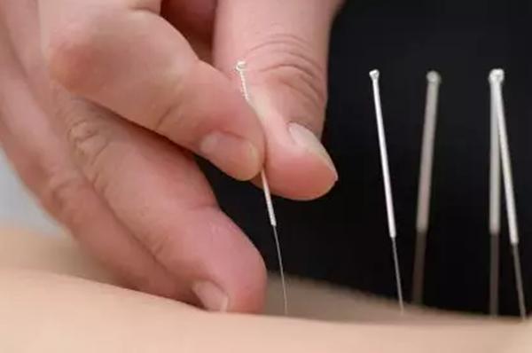 上海针灸培训机构讲解;针灸时需要注意哪些问题?