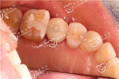 深圳种牙咨询服务机构解读:种植牙的优势有哪些