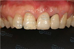 深圳种牙咨询人数不断增加的原因是什么
