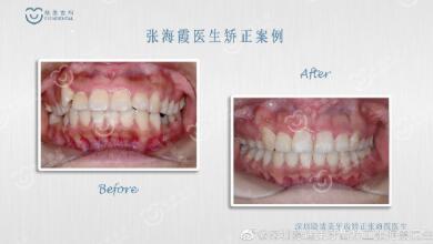 深圳牙齿矫正不同时期应如何饮食
