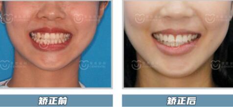 深圳牙齿矫正 1.jpg