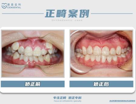 深圳牙齿矫正 3.png