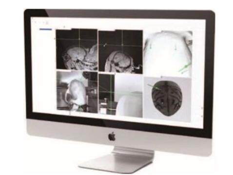 钙成像技术3.jpg